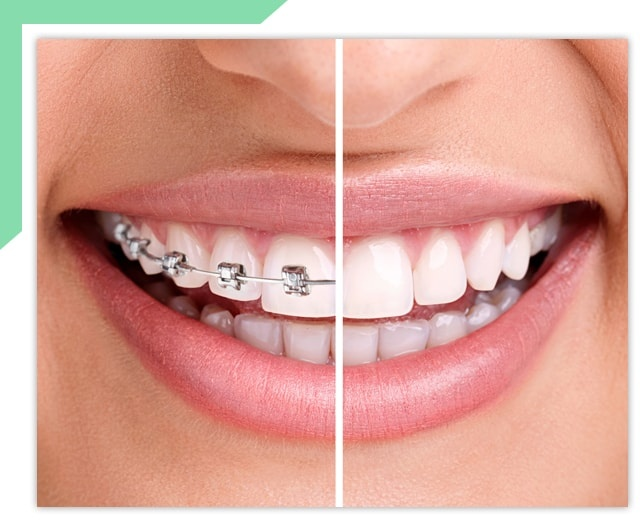 Healthy Smile with Braces