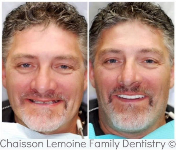 SERVICES PROVIDED: Oral hygiene services followed by an upper bridge which replaced worn teeth & a partial denture. This treatment addressed the patient's  collapsed bite & made him look 10-20 years younger than he did. A very satisfying case for all.
