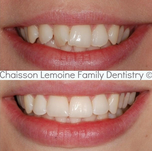 SERVICES PROVIDED: Oral hygiene services followed by orthodontic treatment via Invisalign trays.
