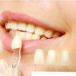 Dental Veneers and Laminates