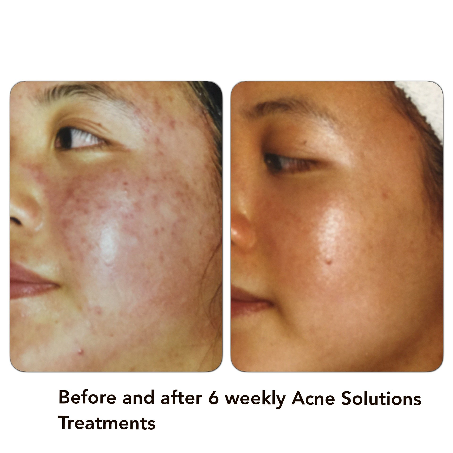 Dermasolutions Acne Photos Before And After