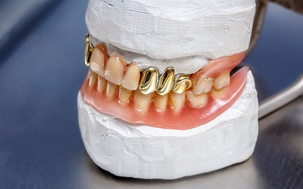 Dental Gold Teeth Prosthesis, Clay Mold Human Gums Model