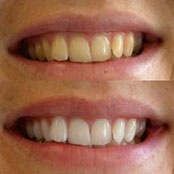 https://0201.nccdn.net/1_2/000/000/0af/8f5/teeth-whitening-before-and-after-174x174.jpg
