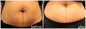 Sublative Striae Treatment for Stretch Mark Reduction