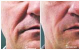 Sublime skin tightening reduces wrinkles and facial lines