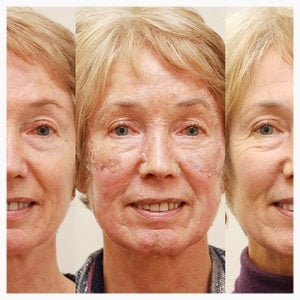 Anti-Aging Peel