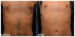 Before and after photo of Laser Hair Removal - Chest