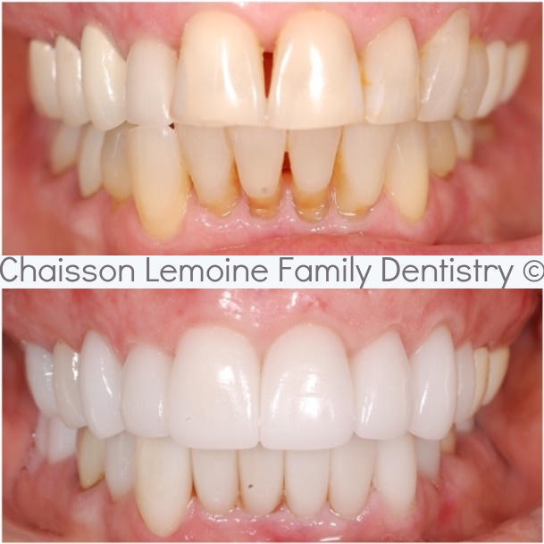 SERVICES PROVIDED: Oral Hygiene Services, Teeth Whitening, 18 Upper Crowns & 10 Lower Crowns