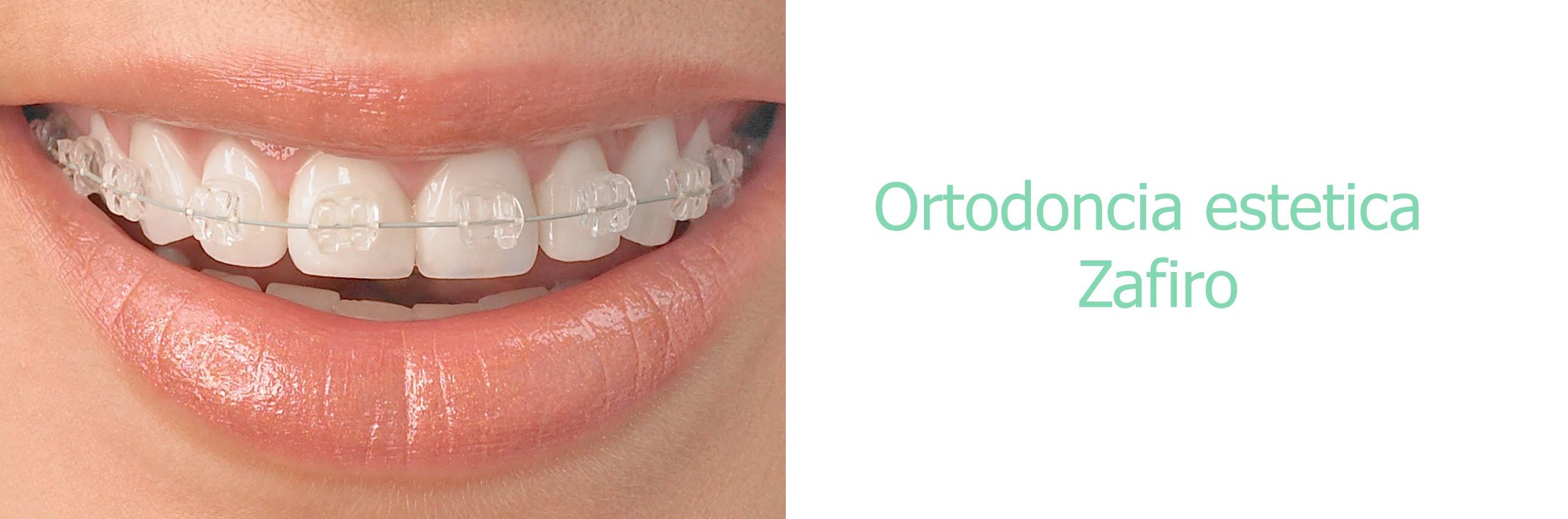 ORTODONCIA DE ZAFIRO La ortodoncia de zafiro es uno de los  tratamientos estéticos que sobresalen por su máxima  calidad y estética en ortodoncia.