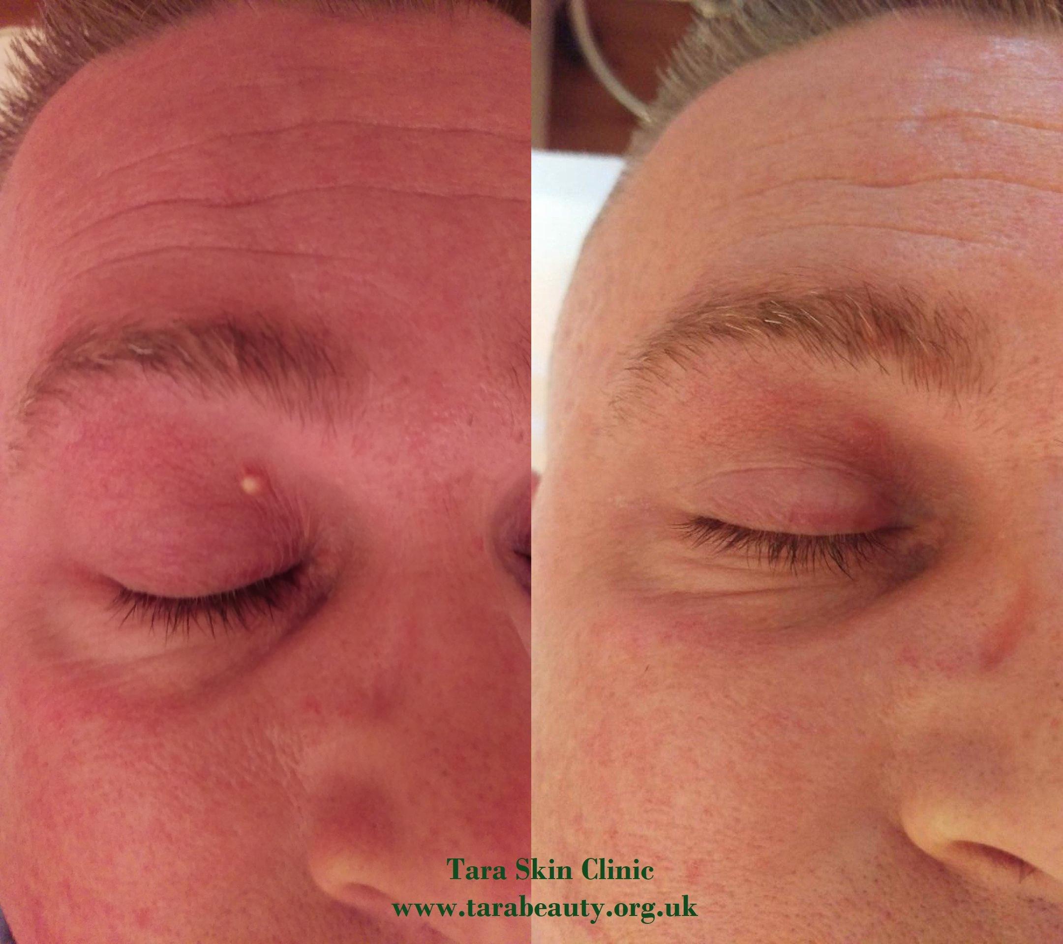 Picture: Tara Skin Clinic