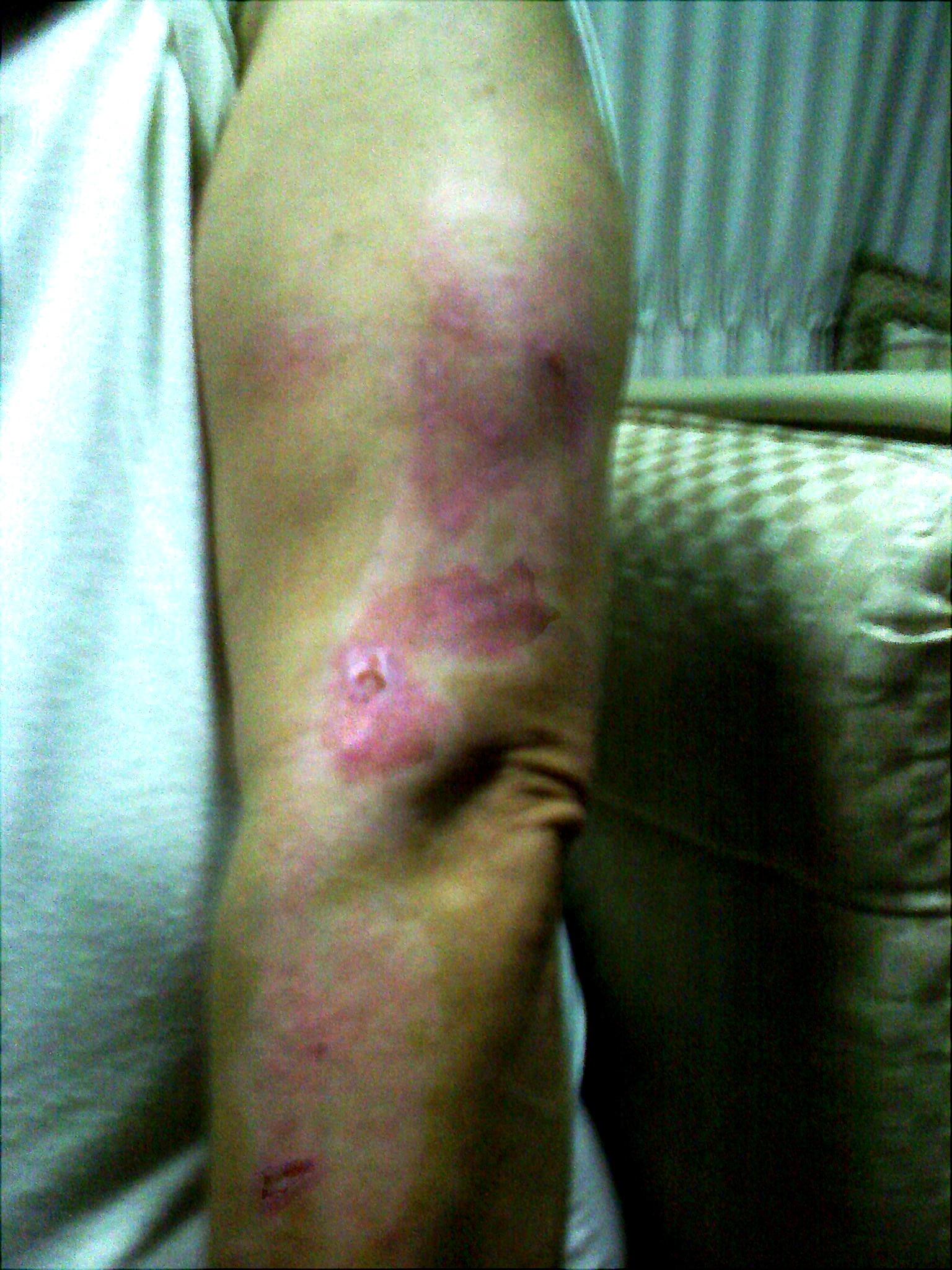     Upper arm burn