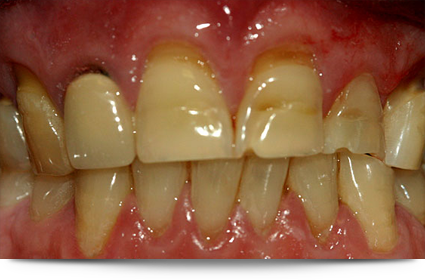Teeth requiring dental crowns||||
