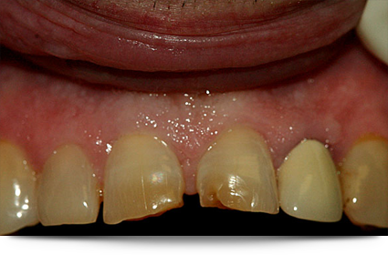 Decayed teeth requiring lava crowns||||
