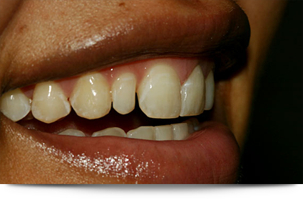 Yellow teeth before treatment||||