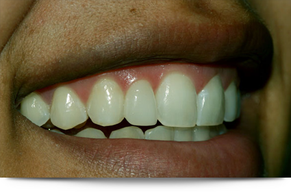 Shining white teeth after treatement||||