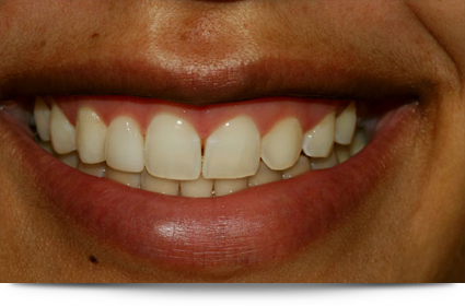 Beautiful smile after lumineer treatment||||