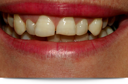 Before veneer treatment||||