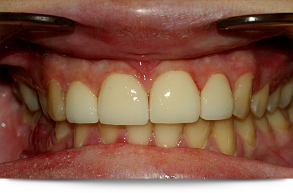 After veneer treatment||||