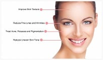 Laser Skin Tightening in Palm Harbor FL - Sublime wrinkle reduction and skin tightening