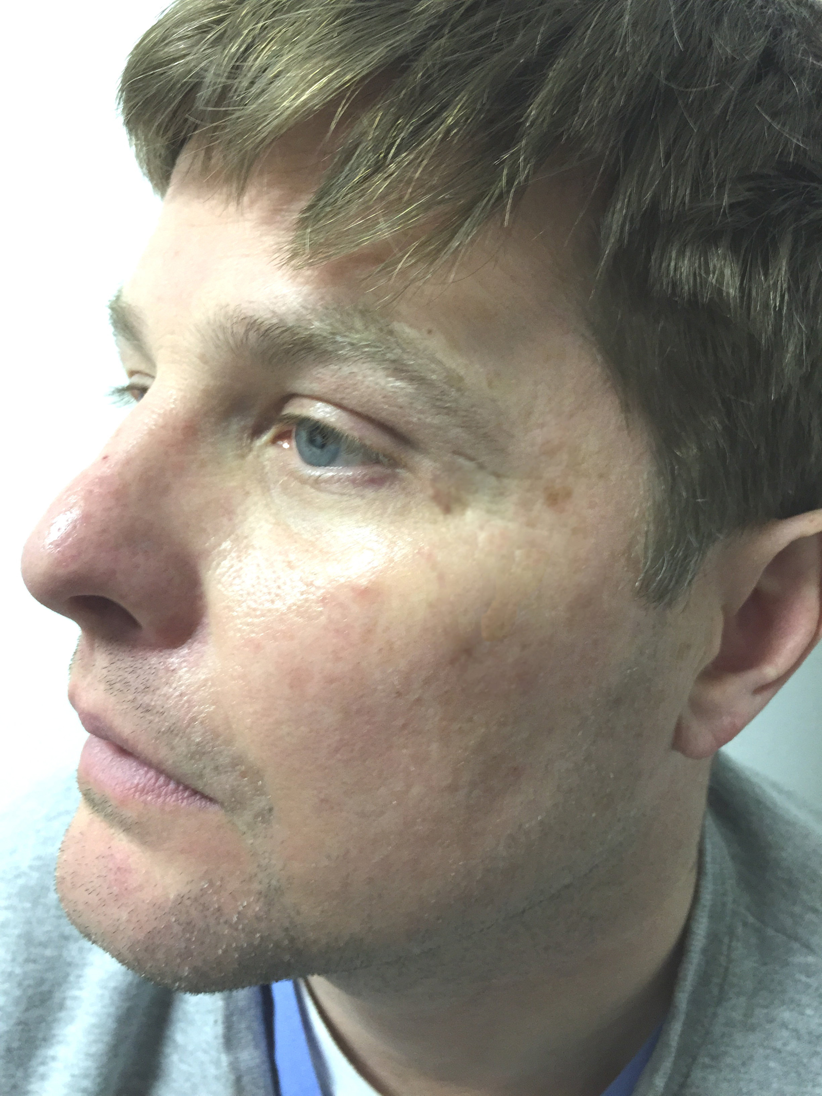 "||||<div style=""text-align: left;"">PA six months after he started to use the skin restore on and off</div>"