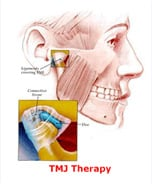 TMJ Therapy||||