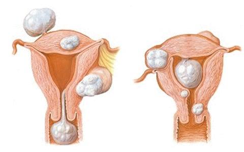 cirugia de miomas uterinos mexico df centro ginecologico