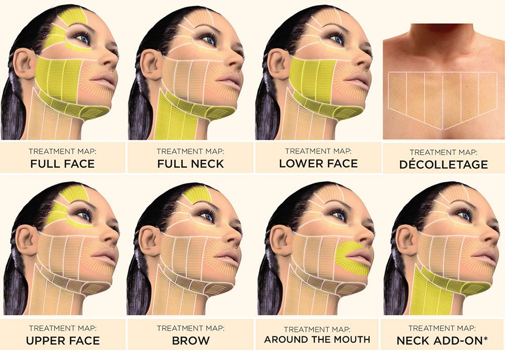 ULTRASOUND-THERAPY HIFU FACELIFT HIFU stands for high intensity focused ultrasound and is an innovative, painless and non-invasive way to reduce wrinkles that lasts up to two years and is skin-friendly.