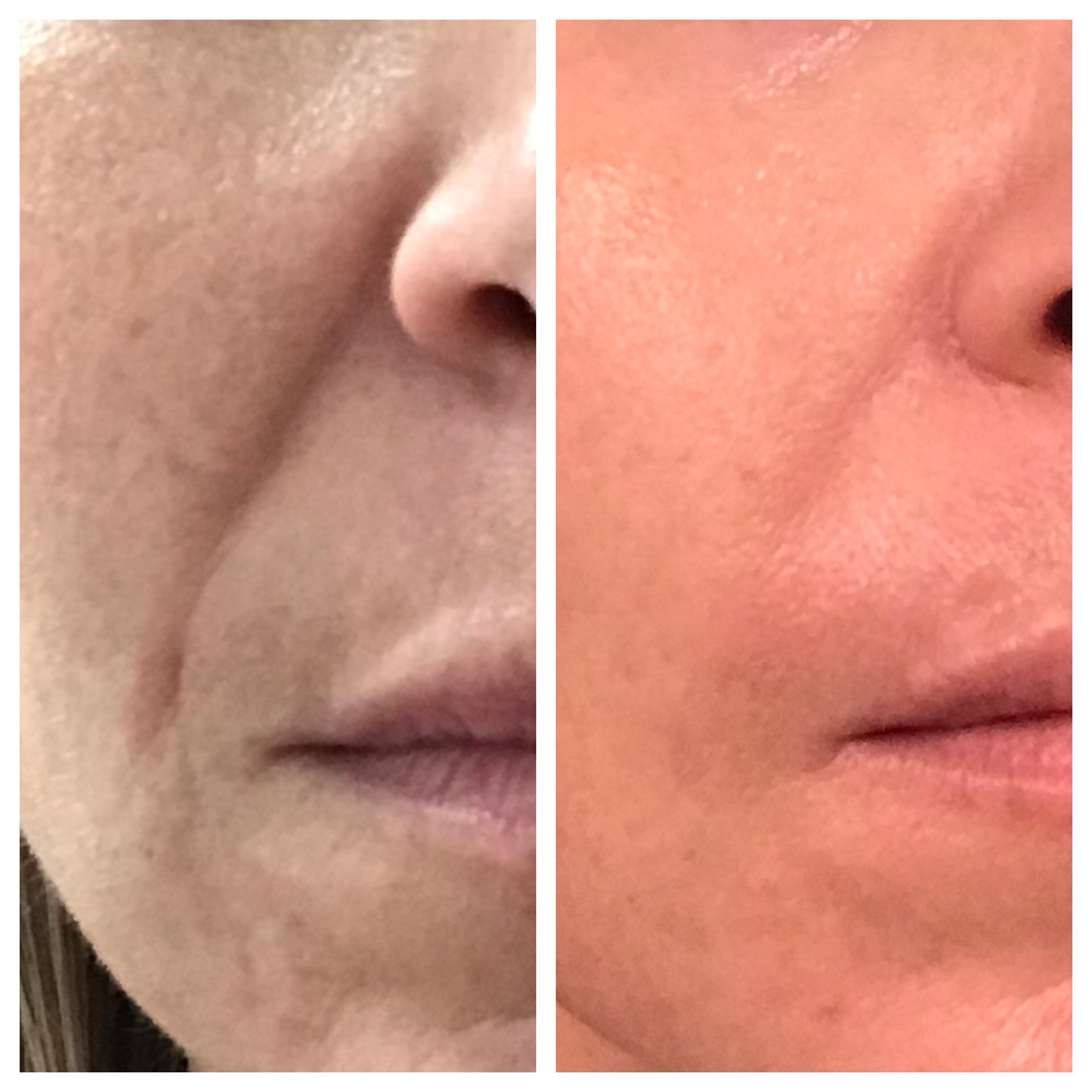 Before/After filler to nasolabial fold