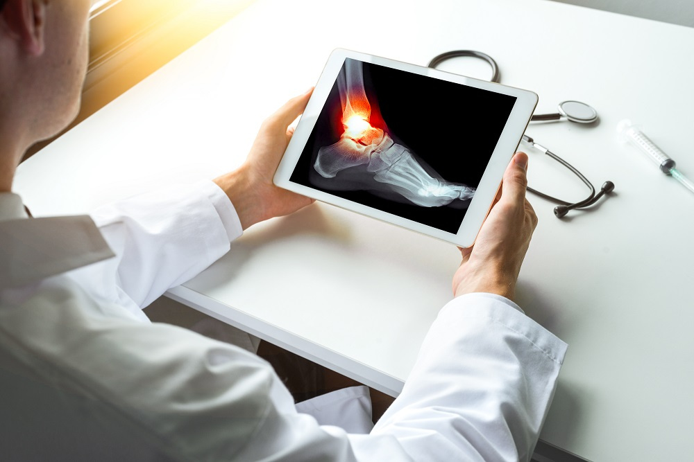 Doctor looking at image of ankle on tablet