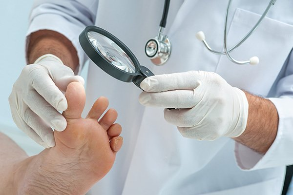 Inspecting fungal infections