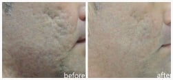Acne Scar Reduction using Sublative RF Rejuvenation