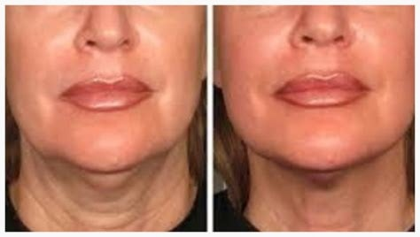 HIFU Non-Surgical Facelift - Full Face in Palm Harbor FL