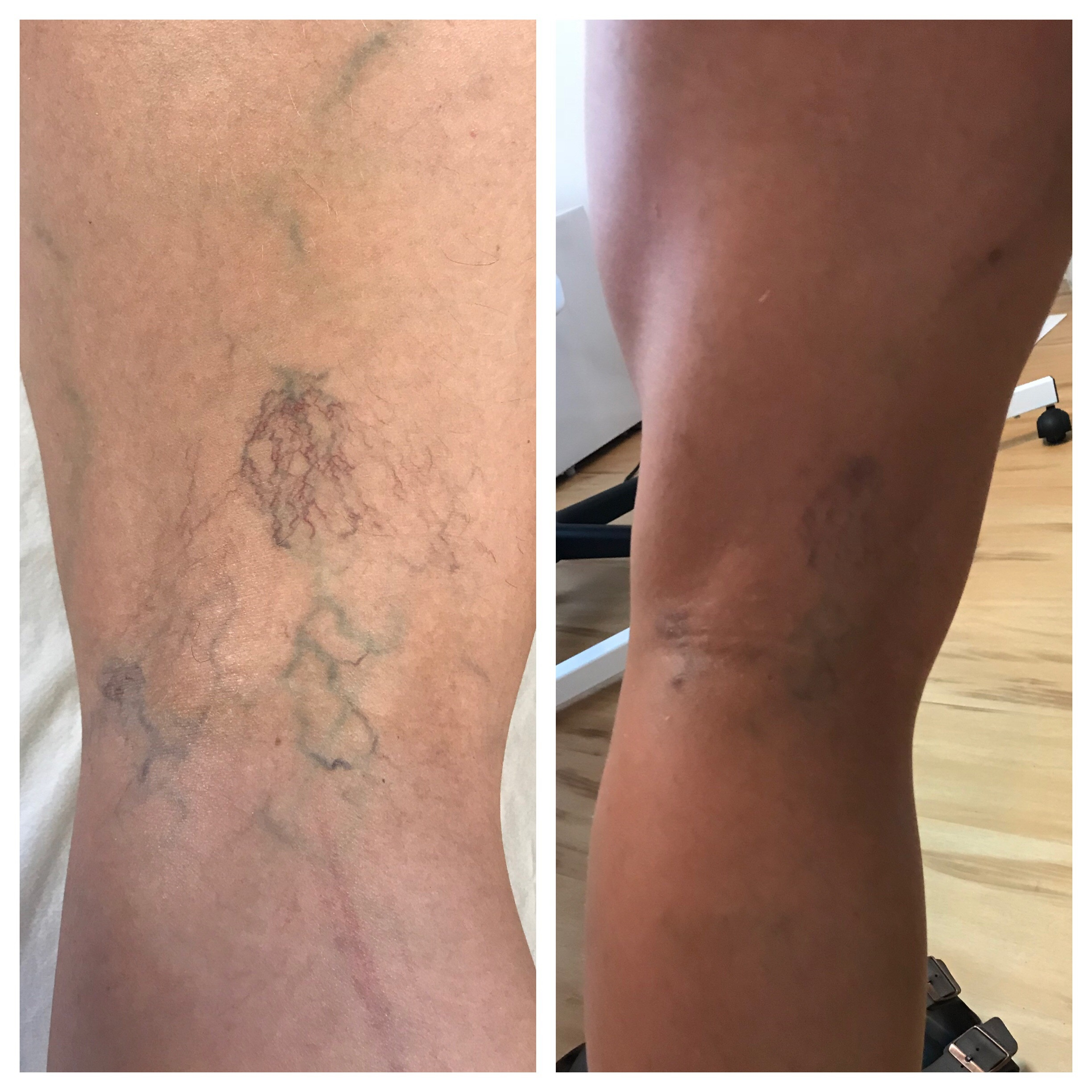 Before/After 1  Sclerotherapy treatment