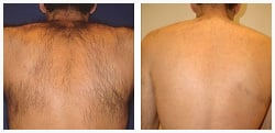 Before and after photo of Laser Hair Removal - Back
