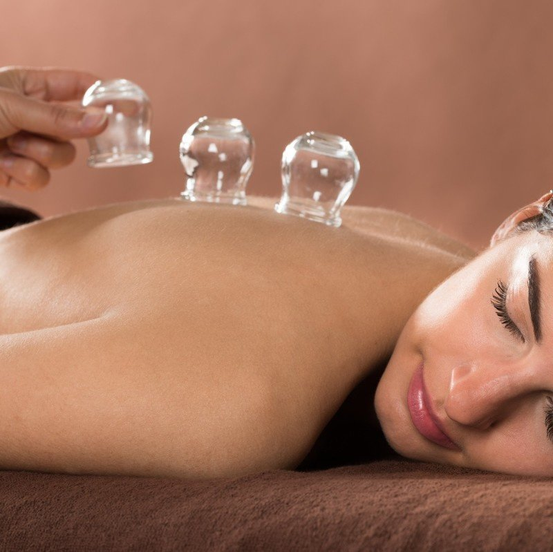 Cupping Massage Fort Collins