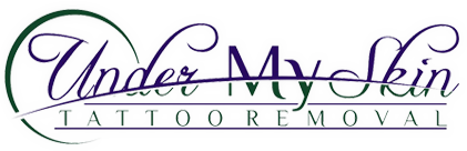 Under My Skin Tattoo Removal in Ozark, MO provides professional laser tattoo removal.
