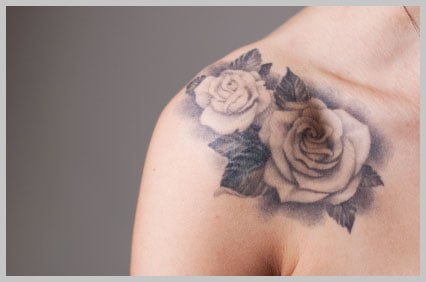 Safe laser tattoo removal||||