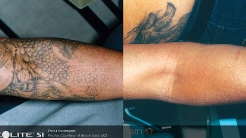 RevLite Tattoo Removal3