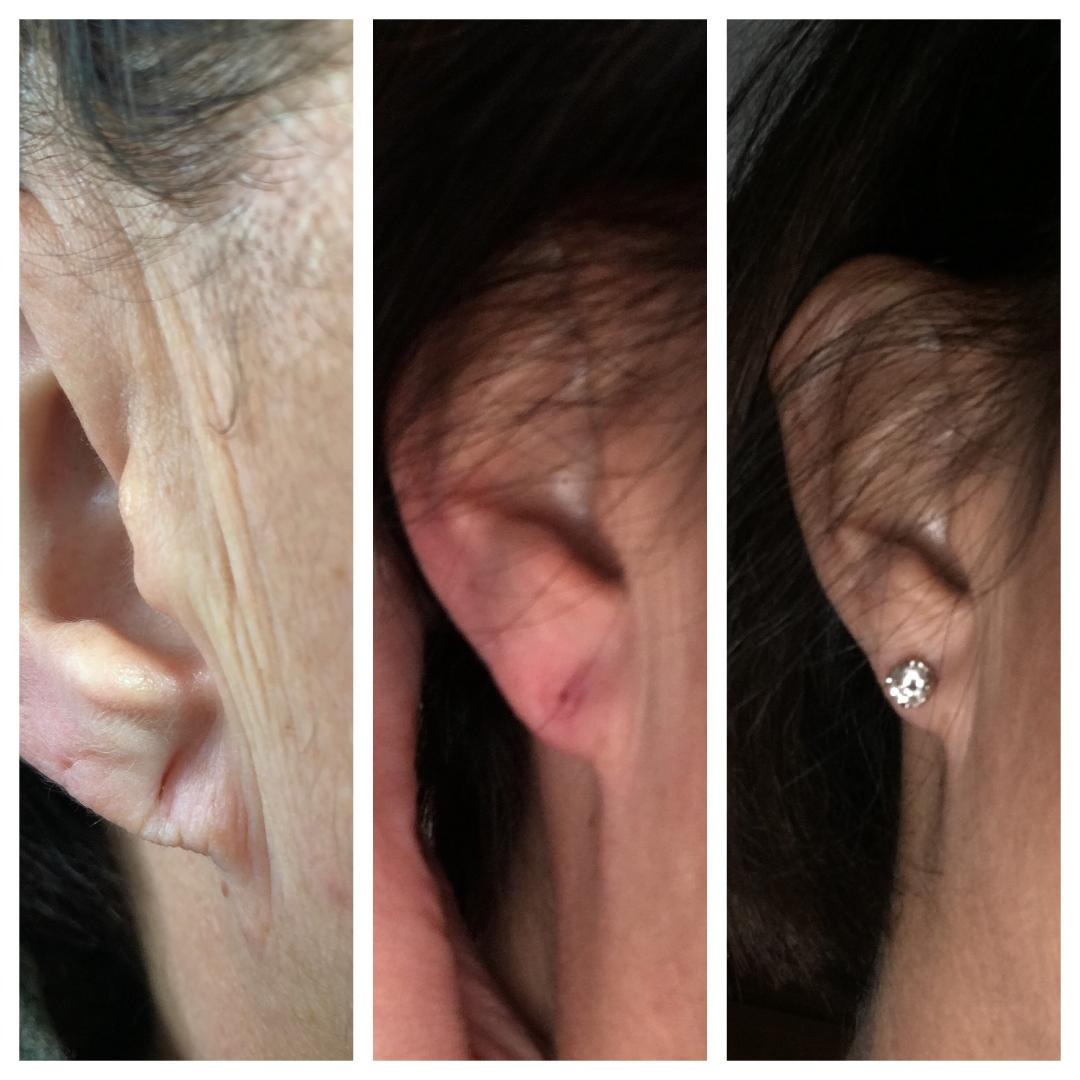 Before/After filler to Ear lobes