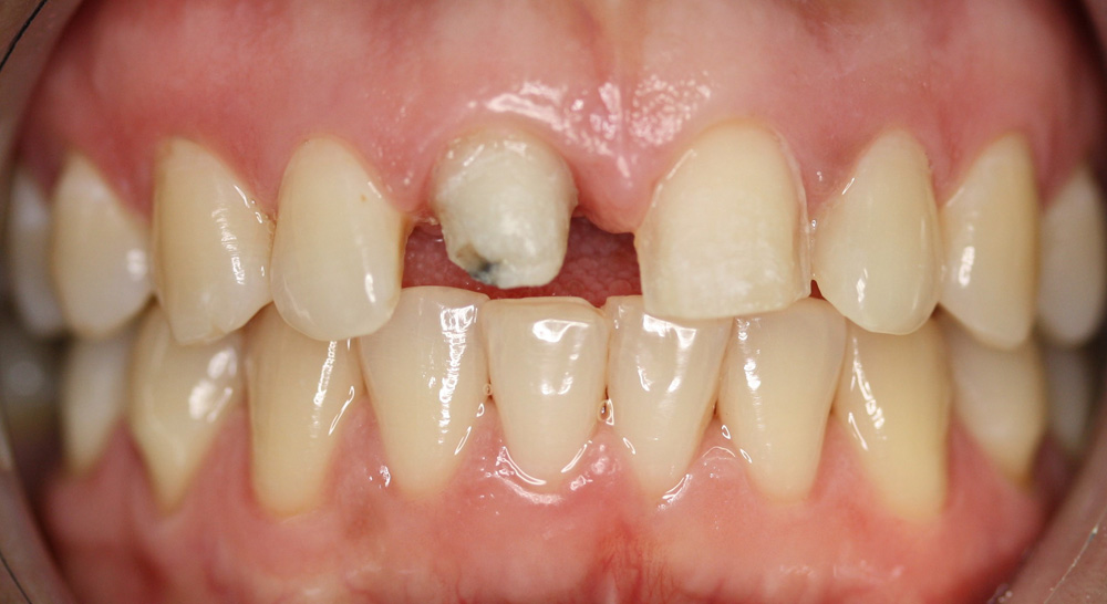 before All-ceramic Restorations