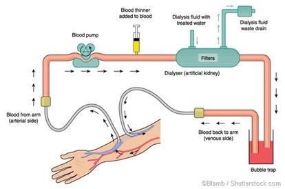 Proceso de hemodialisis
