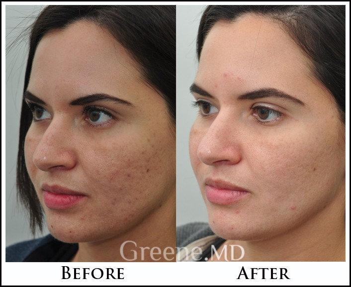 Before and after photos Laser Skin Rejuvenation - Sublative RF Rejuvenation treats Acne Scar reduction