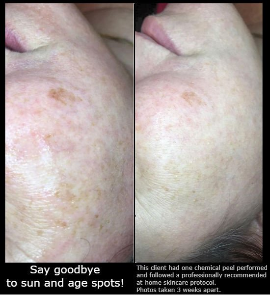 Skin Treatment Before-and-After