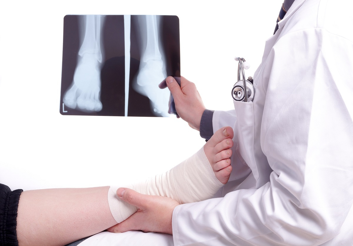 Doctor examining x-rays and patient ankle