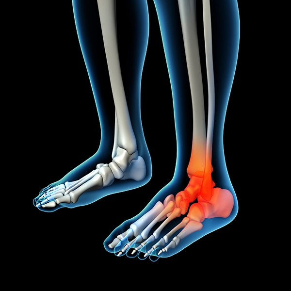 Ankle Pain Treatment