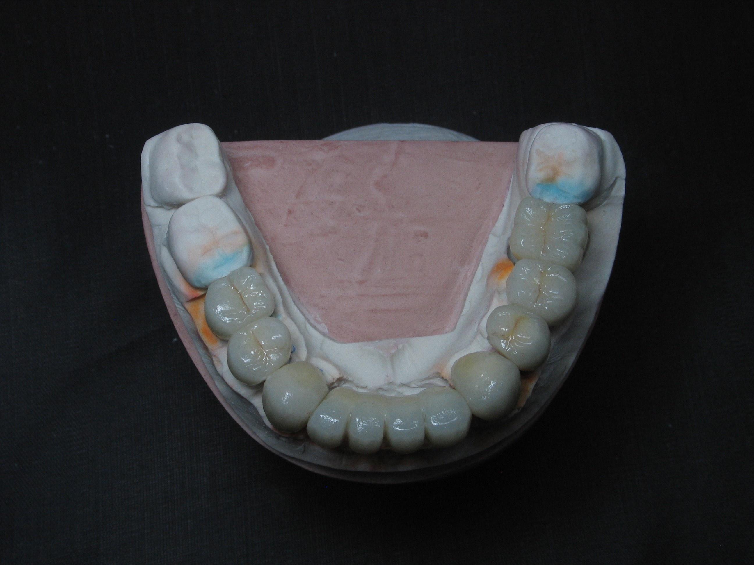 https://0201.nccdn.net/4_2/000/000/038/2d3/Mold_with_Implant-5-2592x1944.jpg