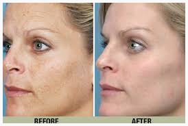 Before and after photos eMatrixPLUS to Erase Wrinkles and Sun Damage