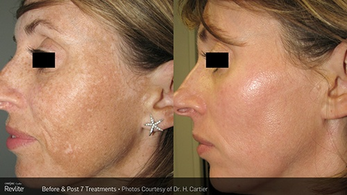 RevLite Melasma Treatment