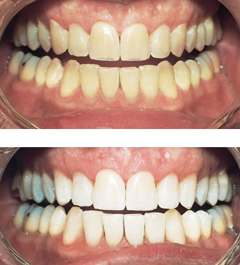 https://0201.nccdn.net/4_2/000/000/038/2d3/teeth-whitening-344x380.jpg