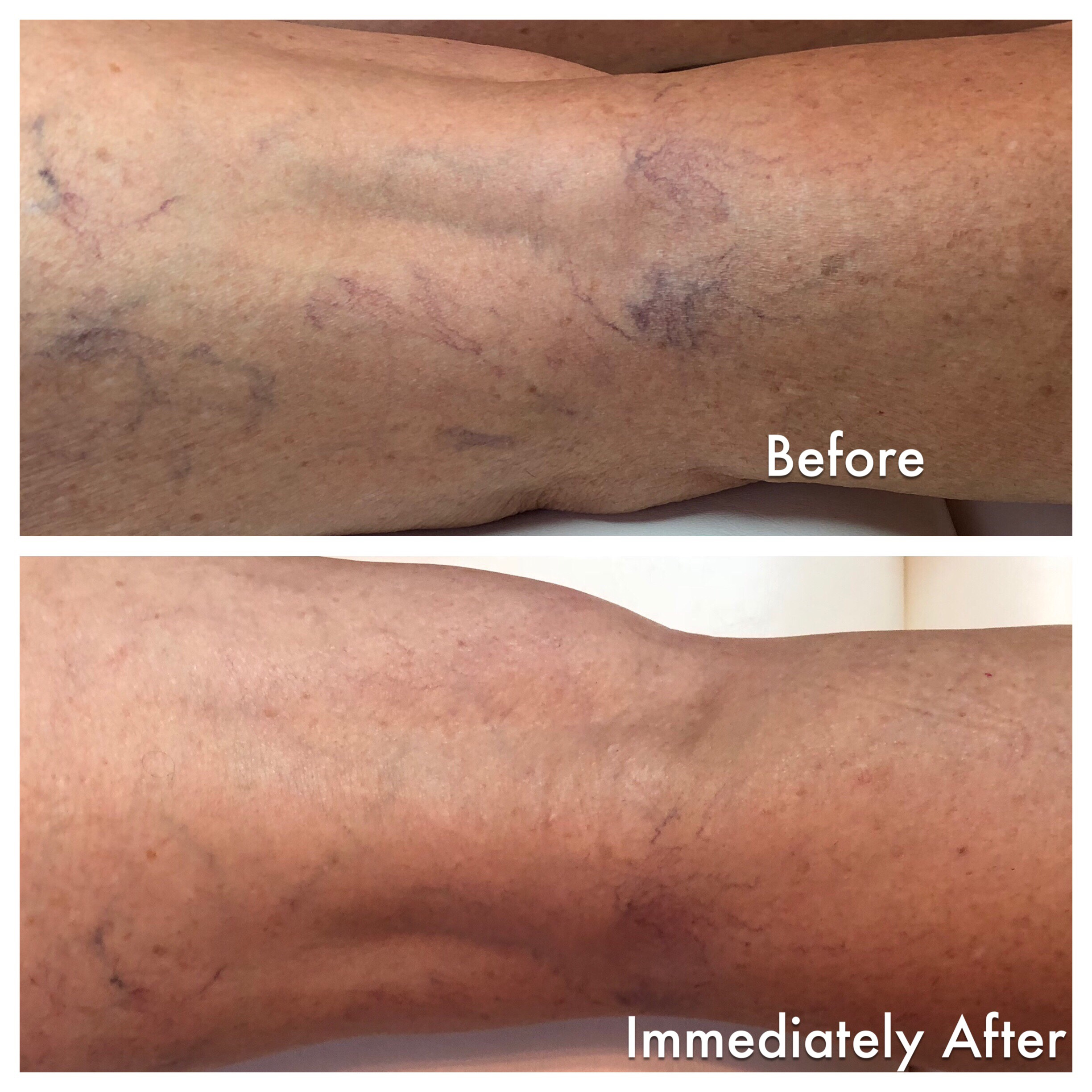 Before after 1 sclerotherapy treatment